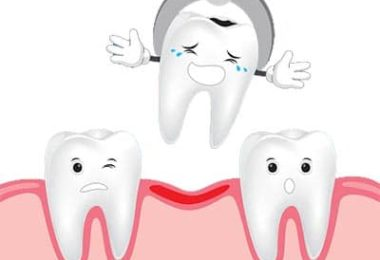 Tooth-Extraction-pediatric-dentist-jersey-city-NJ1